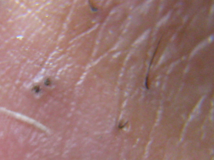 morgellons disease #10