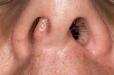 Nasal Polyps Facts You Should Know Perfect Therapy