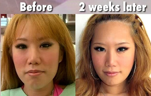 Queen of Blogosphere, Xiaxue, before and after Cosmetic Surgery