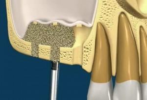 sinus-lift and bone grafting