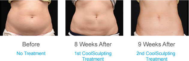 coolsculpting sessions