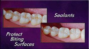 sealants to protect teeth