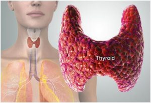 thyroid-related eye problems